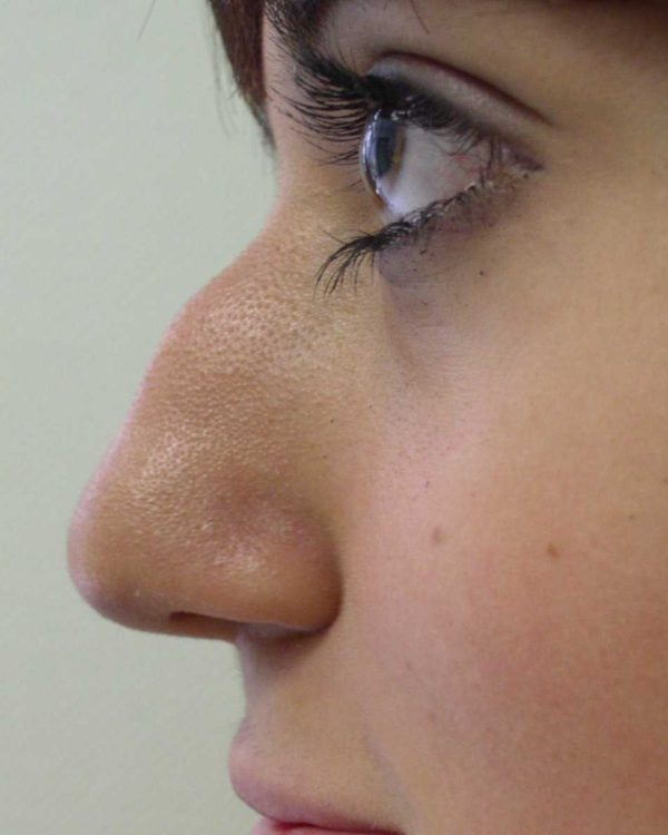 A woman's nose